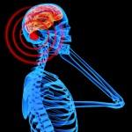 Mobile_Radiation_Brain